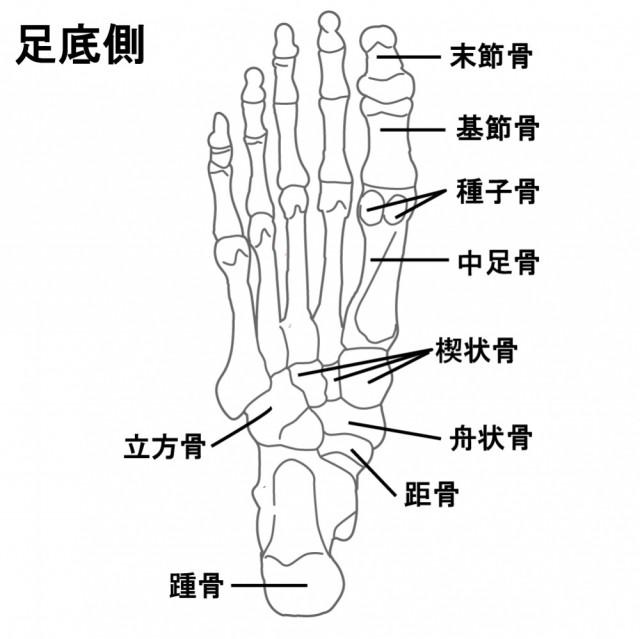 足底筋膜炎の一般的なアプローチ