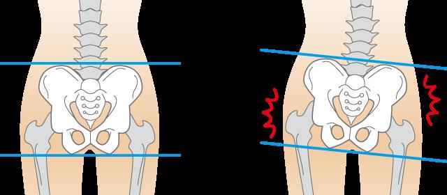 インナーマッスルと骨盤の歪みが首こりの原因です。