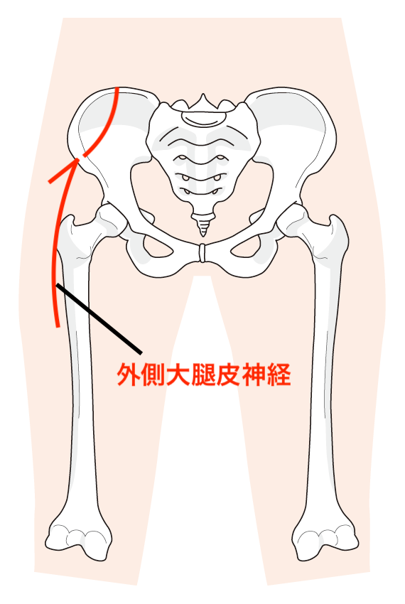 外側大腿皮神経の原因は?