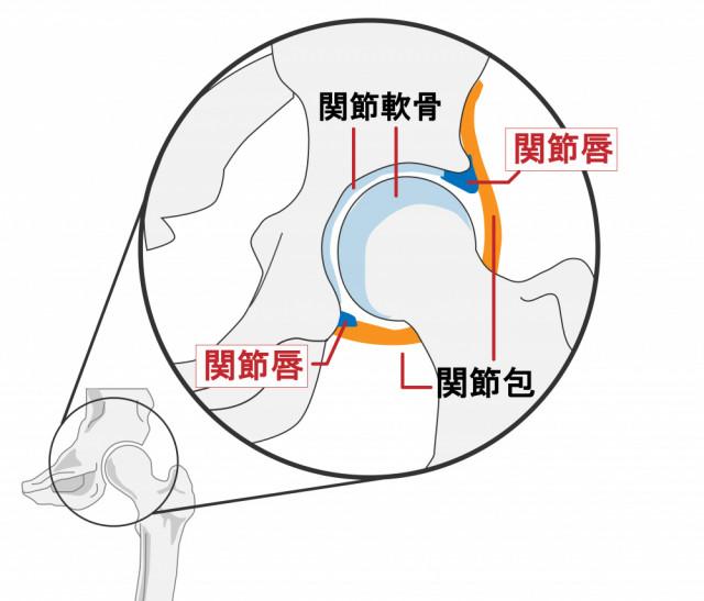 変形性股関節症とは?